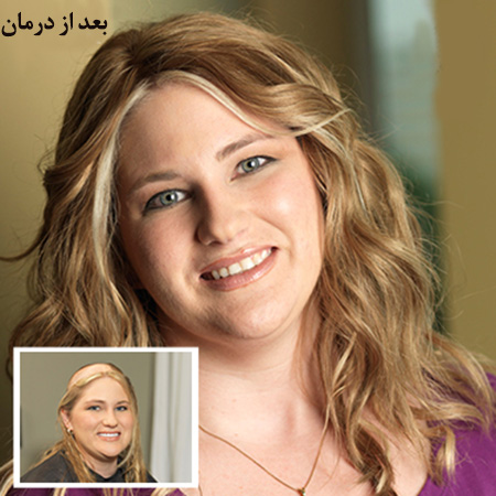 درمان ریزش مو هورمونی در زنان