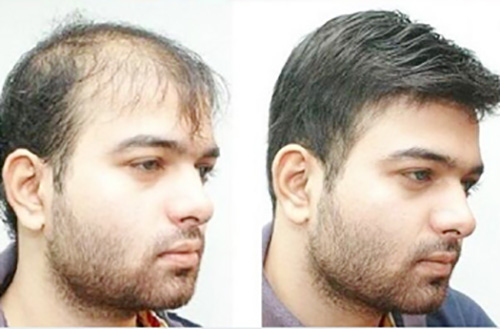 هزینه کاشت مو مصنوعی