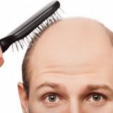 کاشت مو چیست؟ – شرایط کاشت مو – مراحل کاشت مو – روشهای کاشت مو