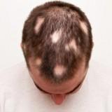 ریزش موی سکه ای، طاسی سکهای (آلوپسی آره آتا): علت و درمان آن