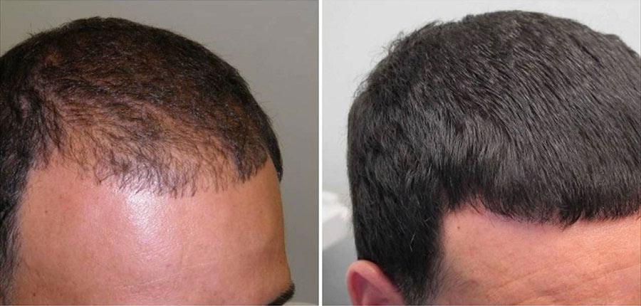 درمان ریزش ریش صورت