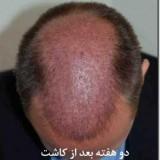 عوارض و خطرات کاشت طبیعی موی سر
