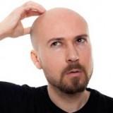 توصیههای قبل از کاشت مو