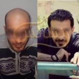کاشت مو به روشSUT