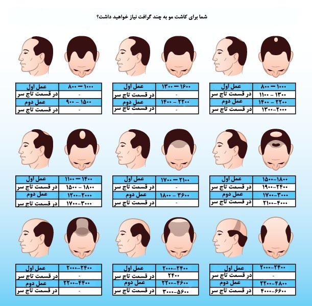 قیمت کاشت موی طبیعی در تهران